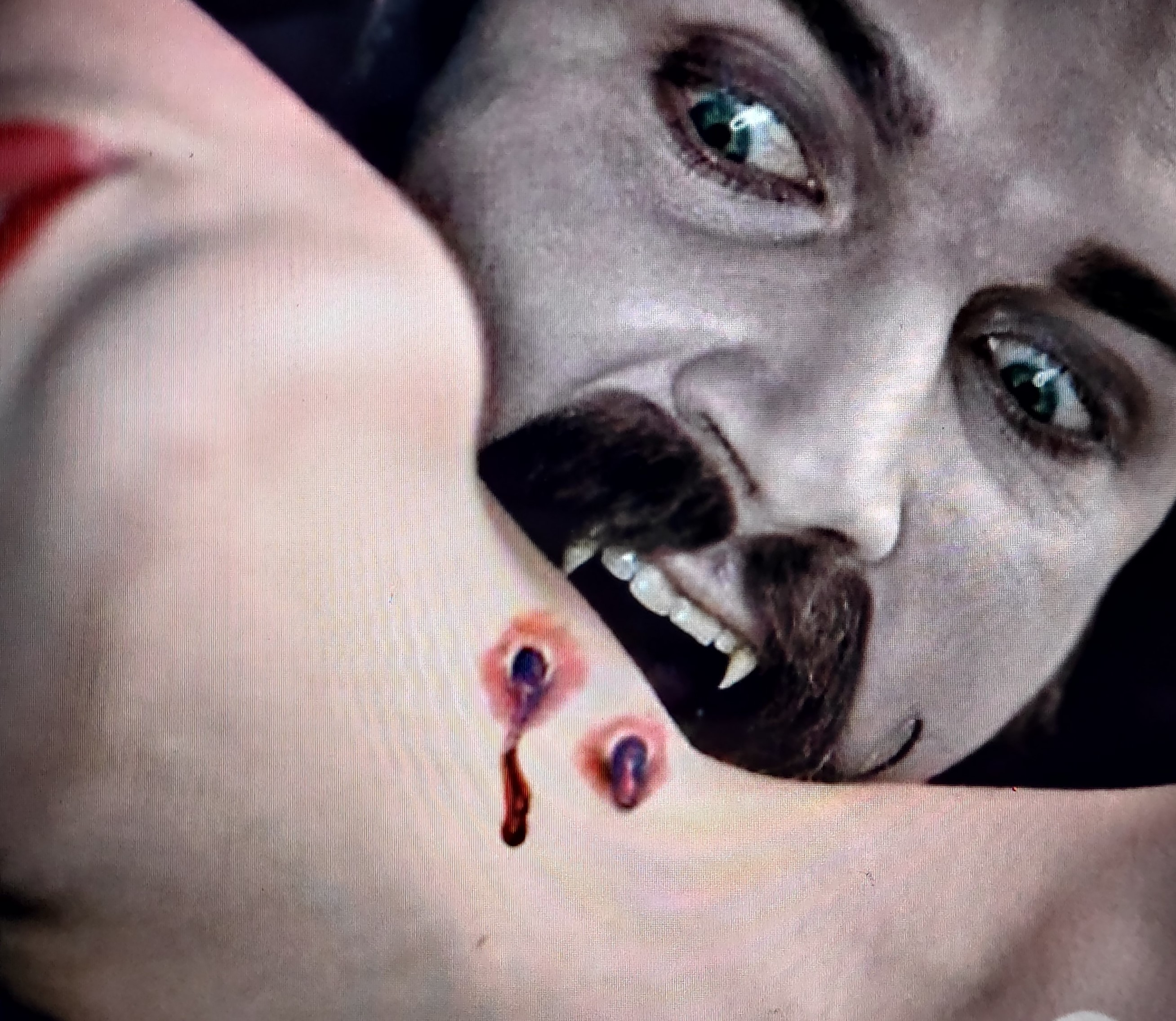 Dracula neck bite